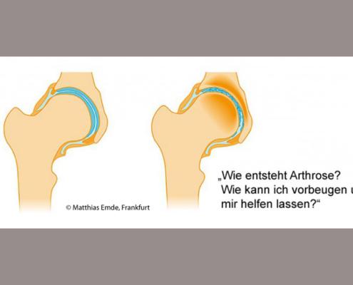 Wie entsteht Arthrose